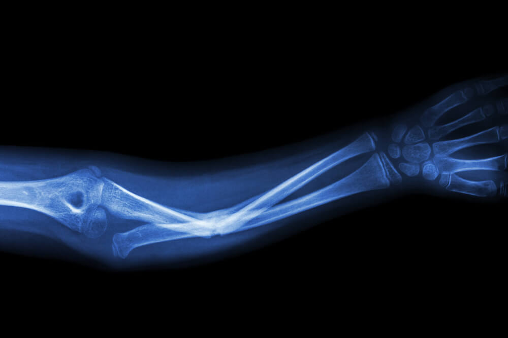 Wrong Metal Plates Used to in Fracture Repair Surgery featured image