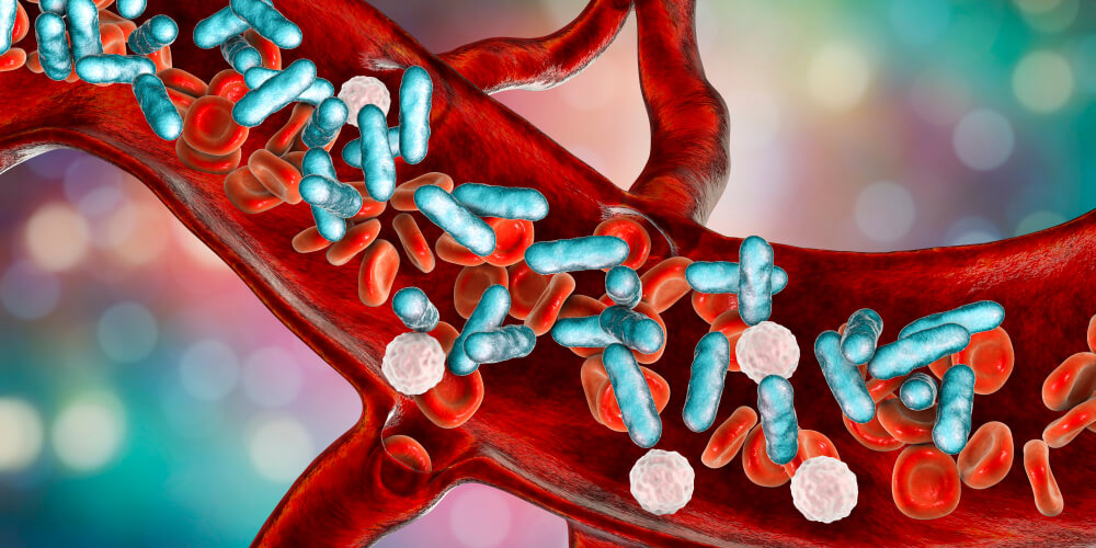 Sepsis Test Expected to Save Lives featured image