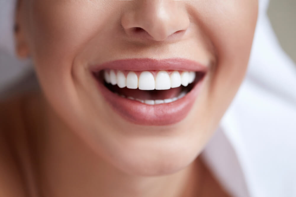 Dental Veneers & Negligence featured image